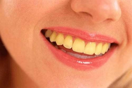 oral health teeth dental london drugs